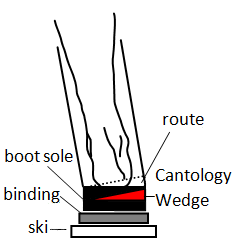 View of inter-sole cant wedges