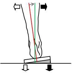 Wedge angle which corrects stance